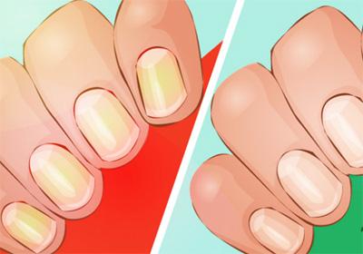 Отбеливание ногтей дома.