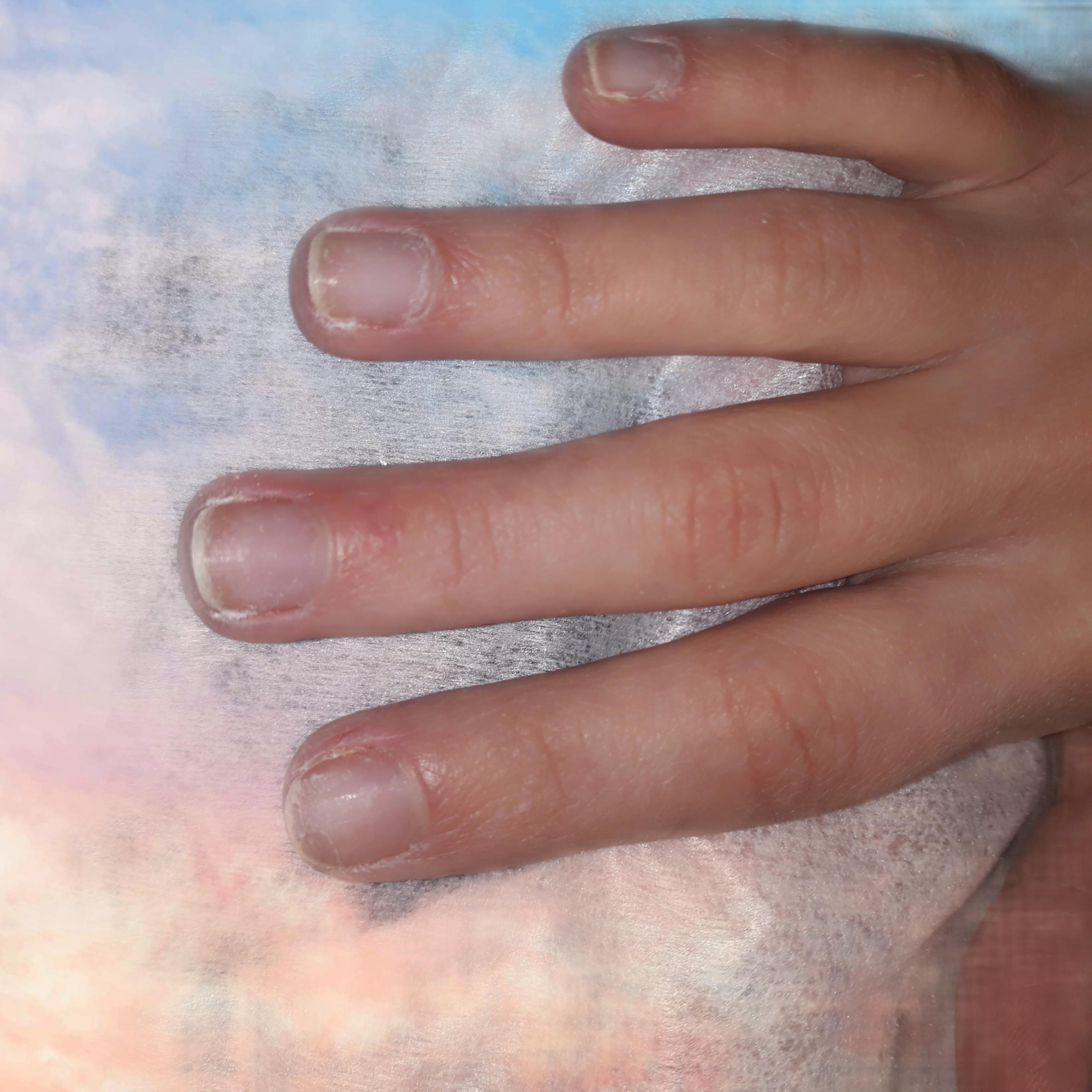 Ногти без выполнения маникюра и покрытия.