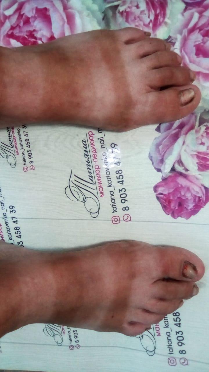 Конечно ножки до процедуры ,не правда вкусные .